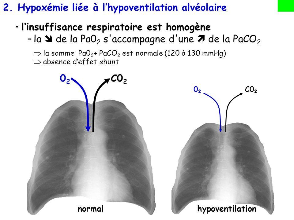 Hypoxémie liée à l'hypoventilation alvéolaire