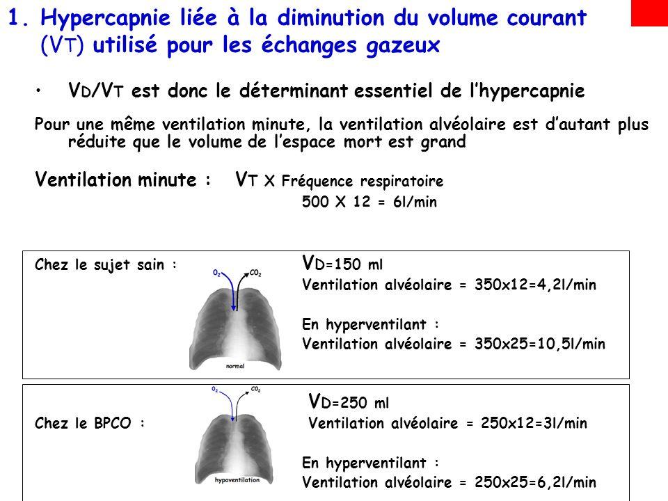 Hypercapnie liée à la diminution du volume courant (VT) utilisé pour les échanges gazeux