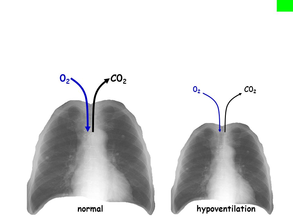 normal hypoventilation 02 C02