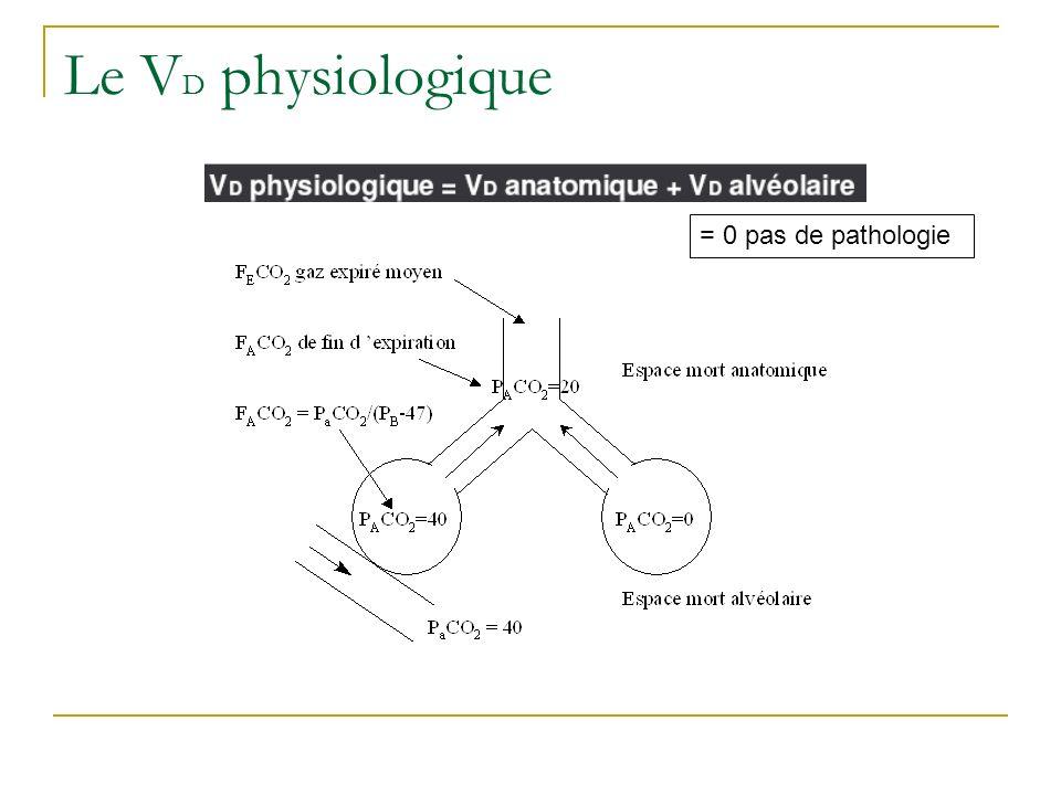 Le VD physiologique = 0 pas de pathologie