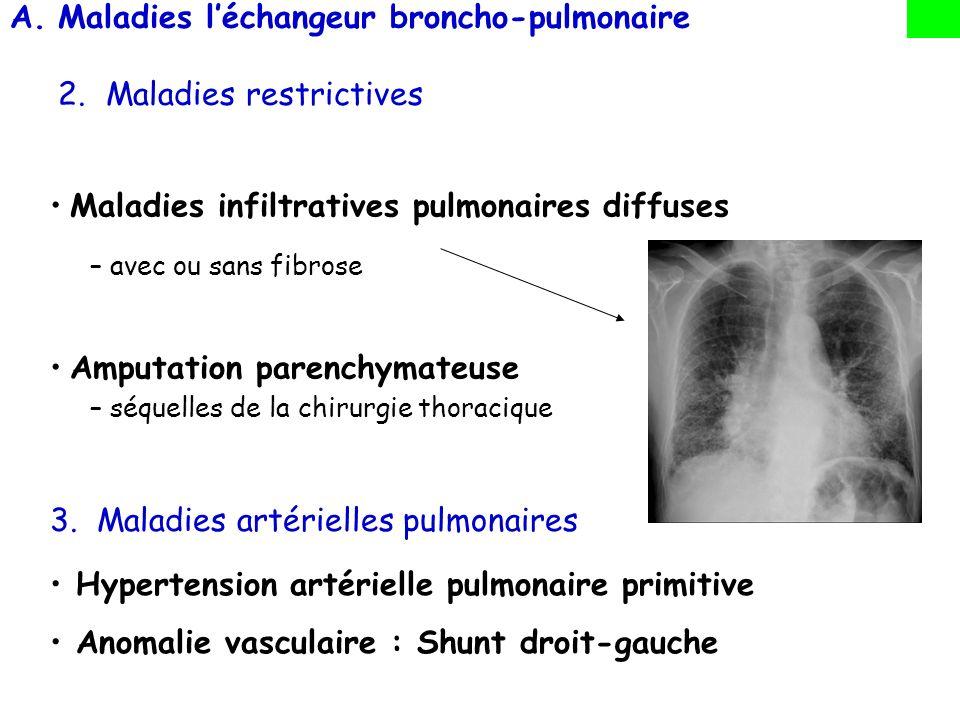 Maladies l'échangeur broncho-pulmonaire 2. Maladies restrictives