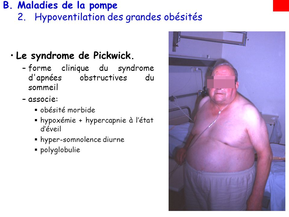 Maladies de la pompe 2. Hypoventilation des grandes obésités