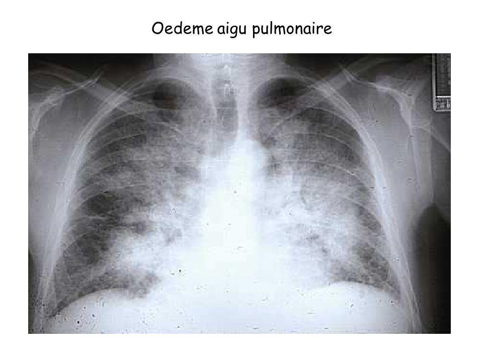 Oedeme aigu pulmonaire