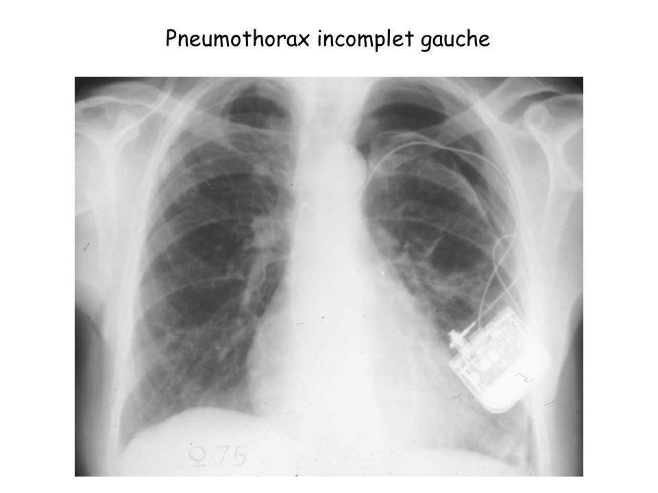 Pneumothorax incomplet gauche