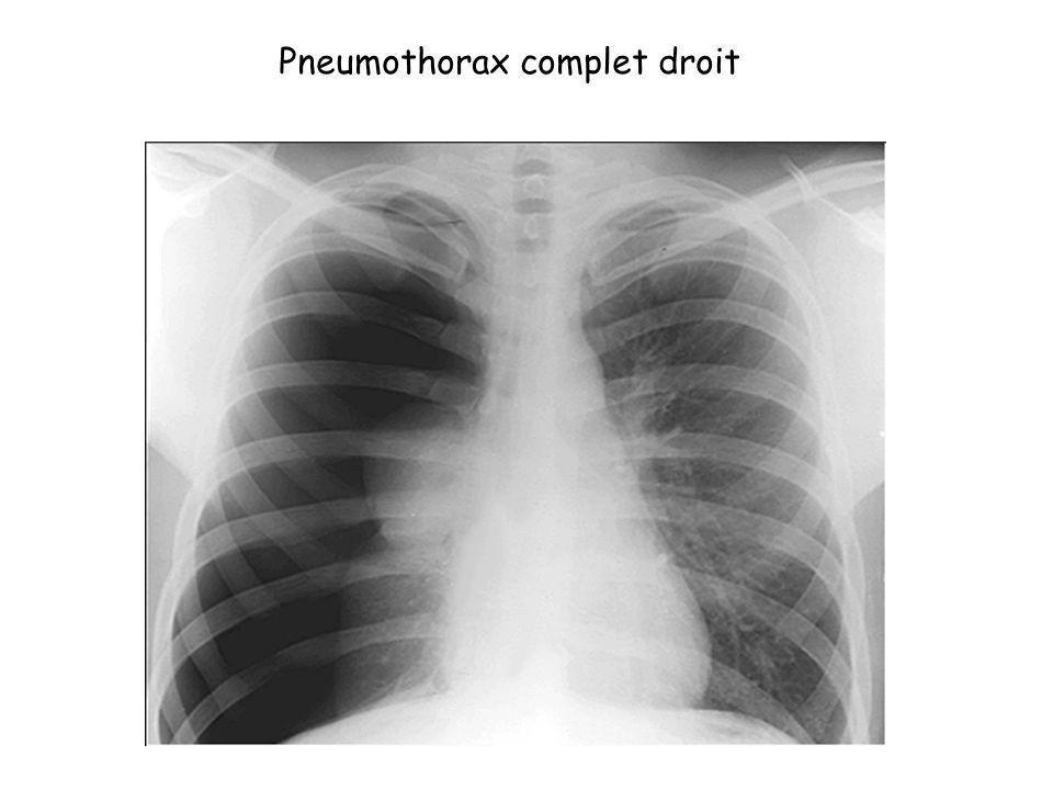 Pneumothorax complet droit