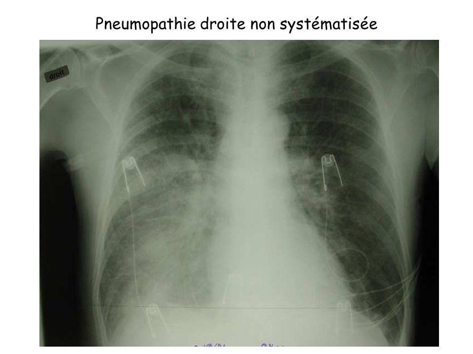 Pneumopathie droite non systématisée