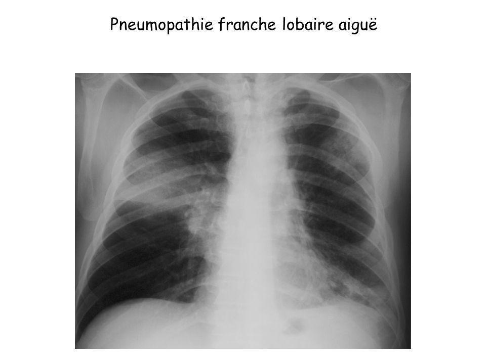 Pneumopathie franche lobaire aiguë