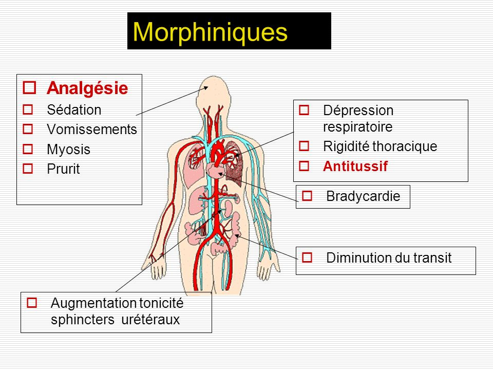 Morphiniques Analgésie Sédation Vomissements Dépression respiratoire