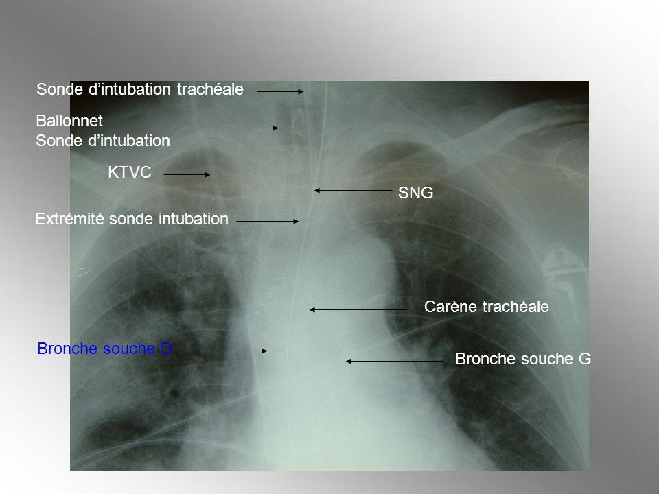 Sonde d'intubation trachéale