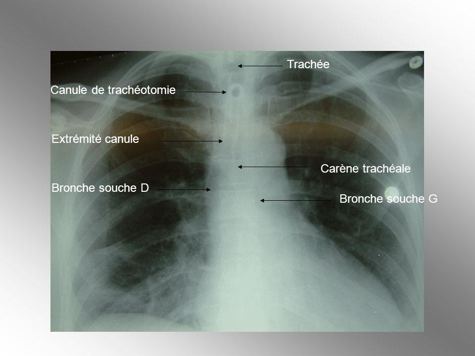 Trachée Canule de trachéotomie Extrémité canule Carène trachéale Bronche souche D Bronche souche G