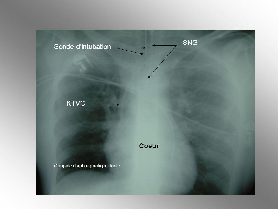 SNG Sonde d'intubation KTVC Coeur Coupole diaphragmatique droite