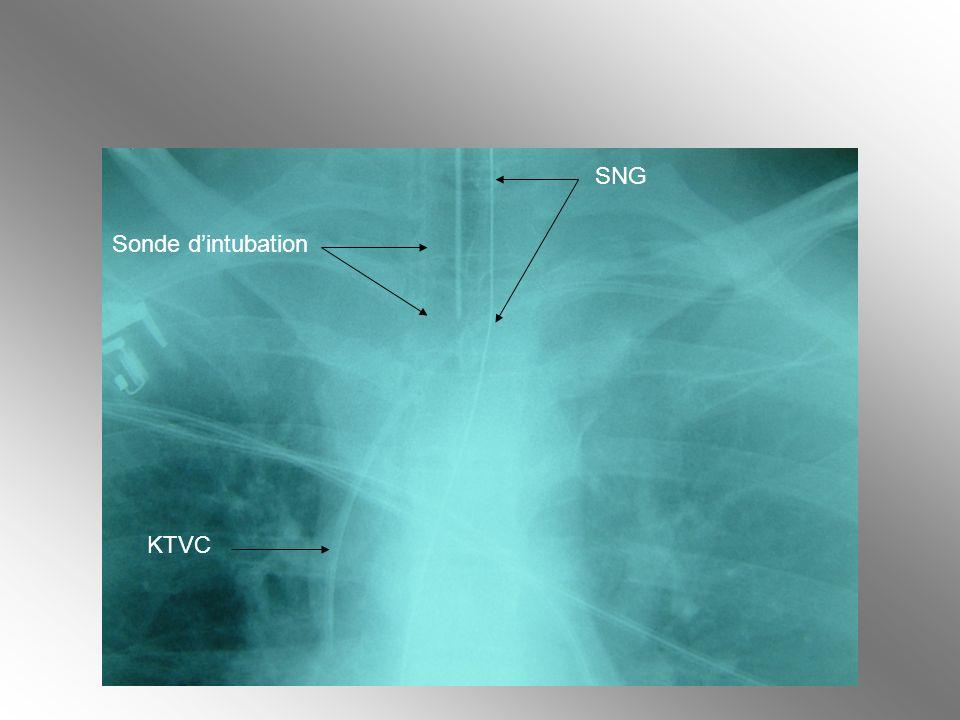 SNG Sonde d'intubation KTVC