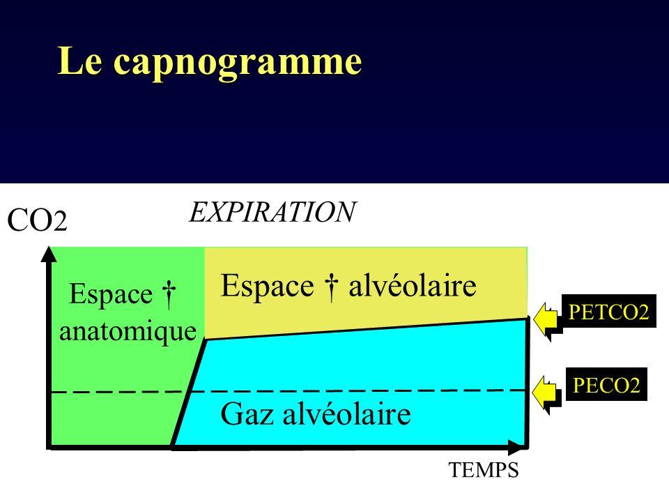 Le capnogramme CO2 Espace † alvéolaire Gaz alvéolaire EXPIRATION