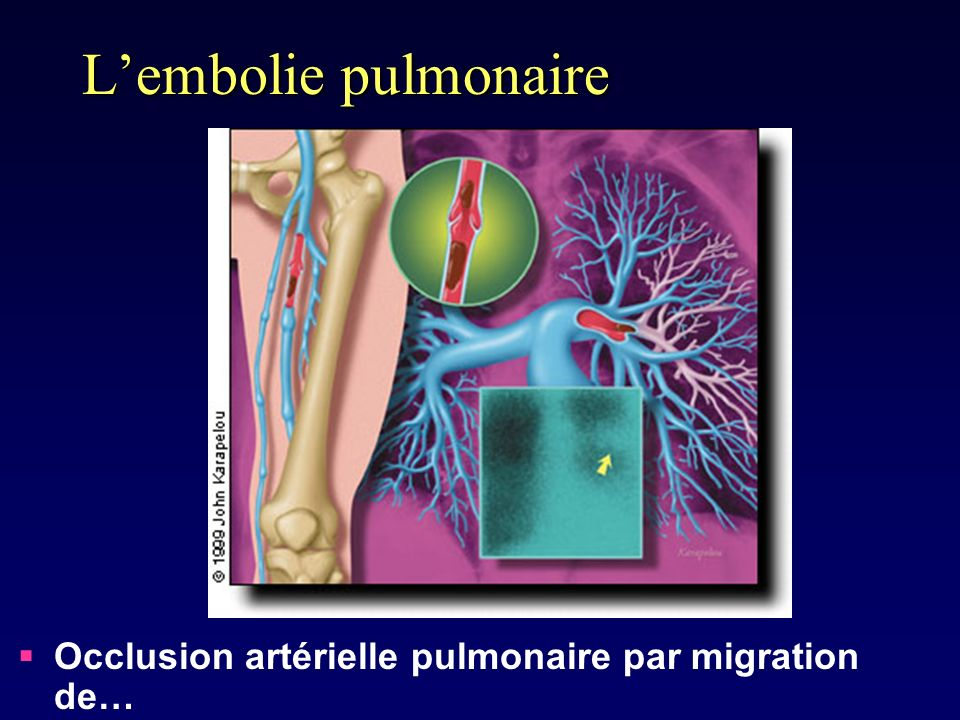 L'embolie pulmonaire Occlusion artérielle pulmonaire par migration de…