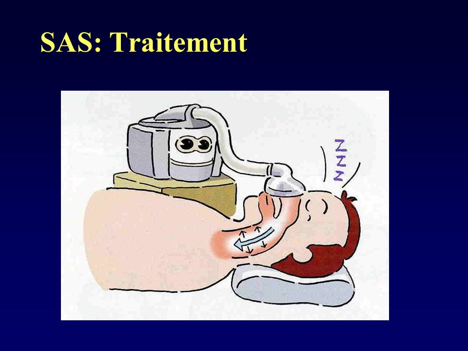 SAS: Traitement