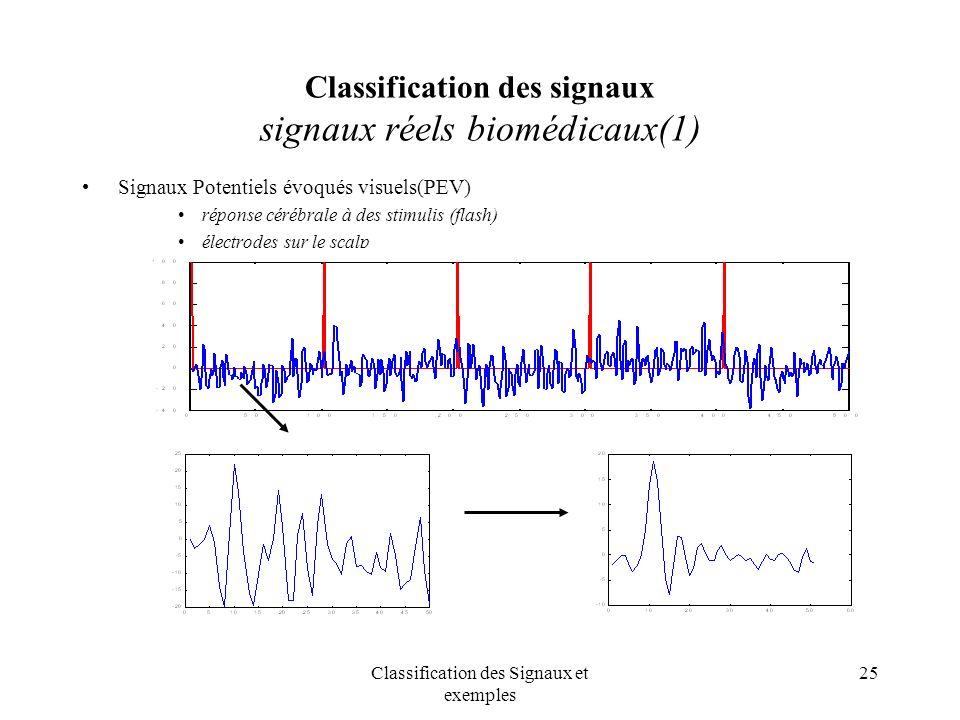 Classification des signaux signaux réels biomédicaux(1)