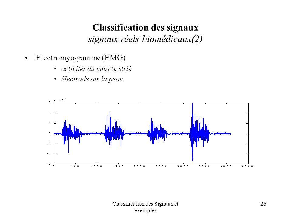 Classification des signaux signaux réels biomédicaux(2)