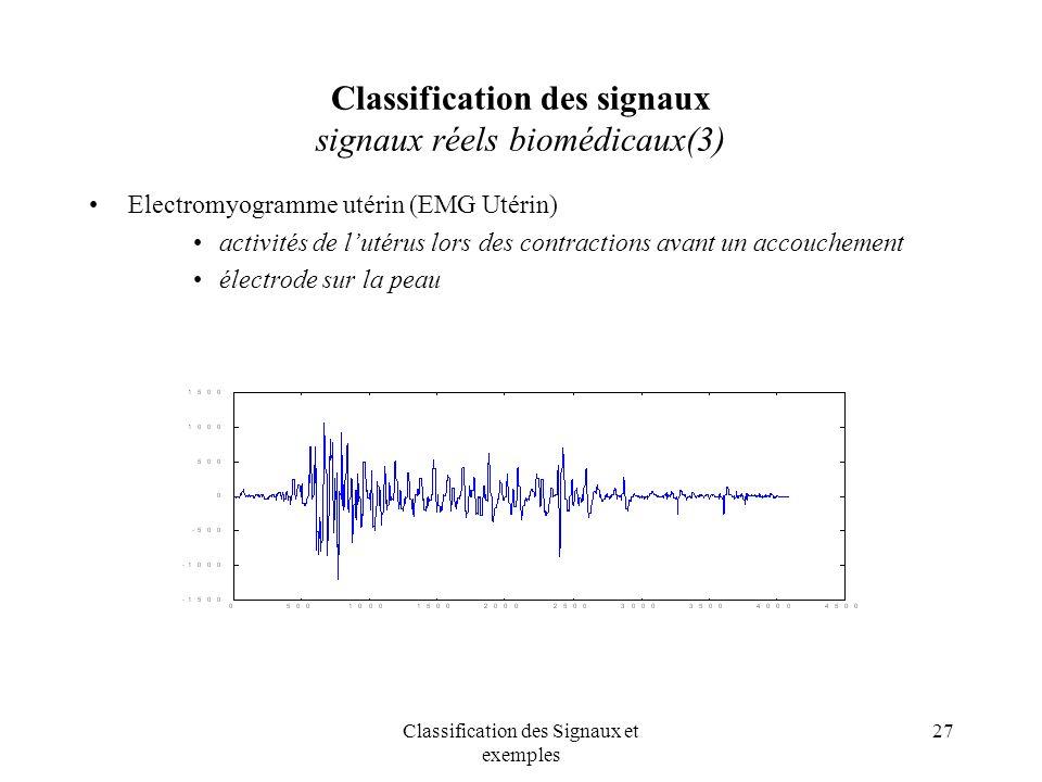 Classification des signaux signaux réels biomédicaux(3)