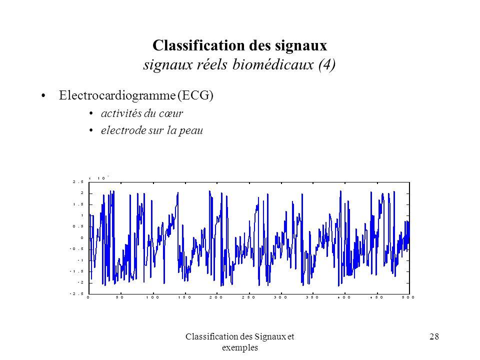 Classification des signaux signaux réels biomédicaux (4)