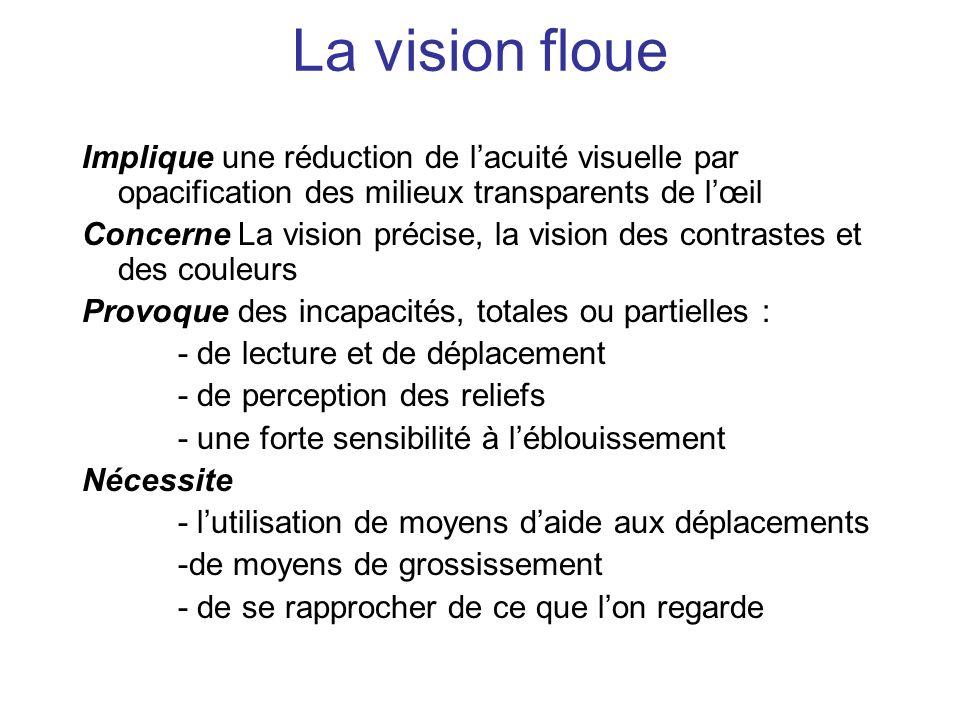 La vision floueImplique une réduction de l'acuité visuelle par opacification des milieux transparents de l'œil.
