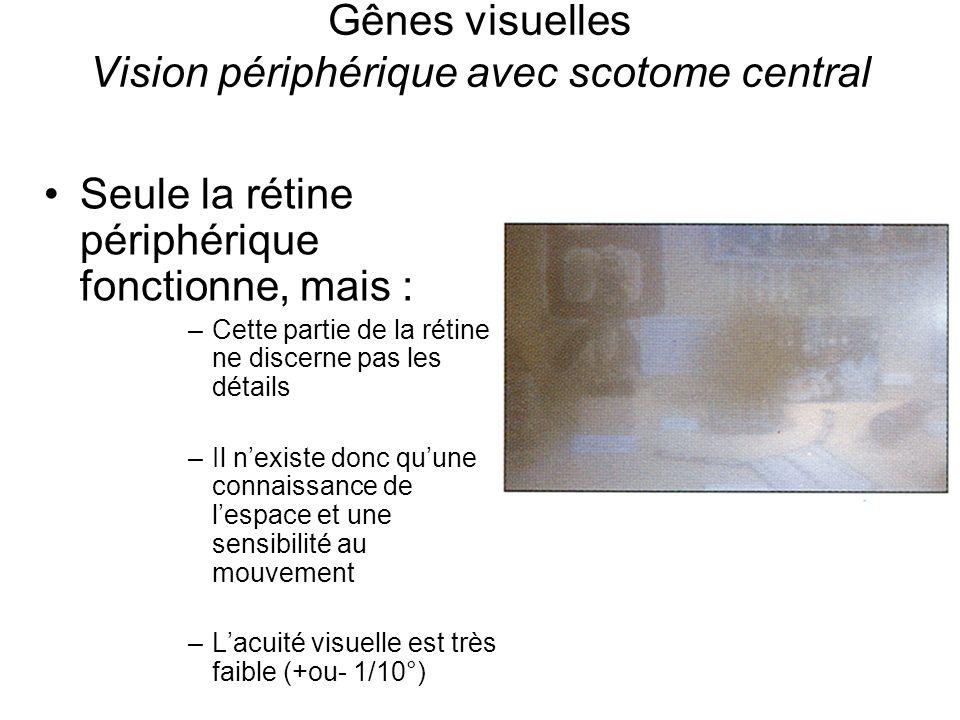 Gênes visuelles Vision périphérique avec scotome central