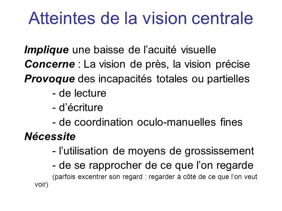 Atteintes de la vision centrale