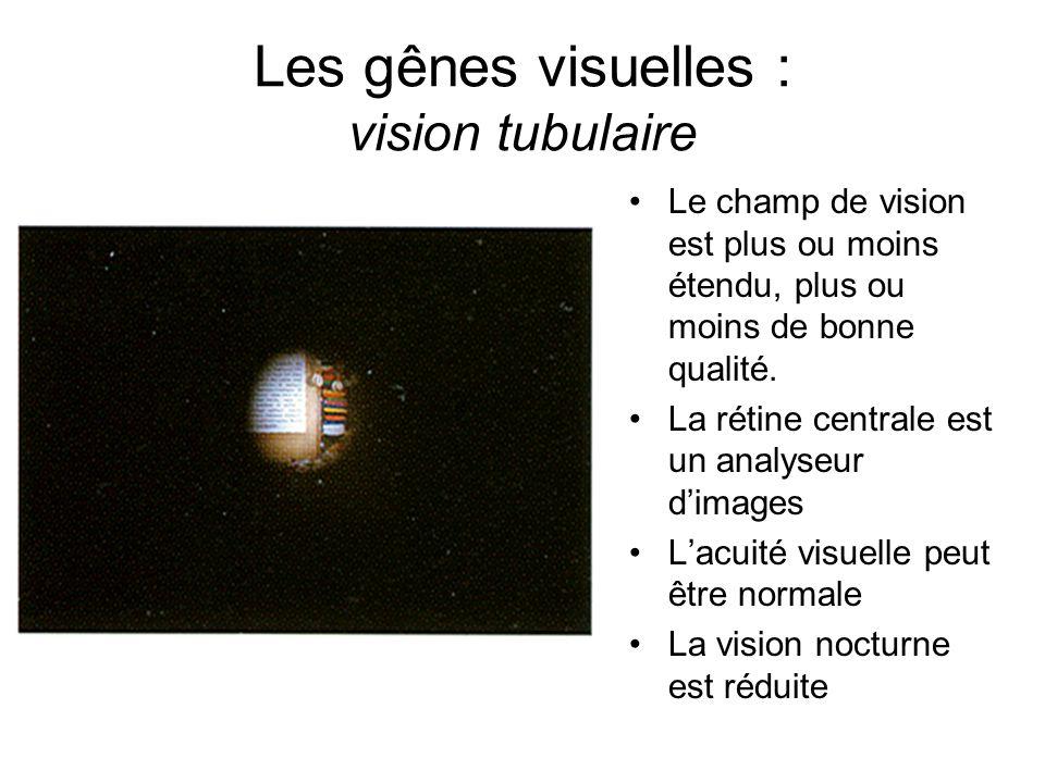 Les gênes visuelles : vision tubulaire