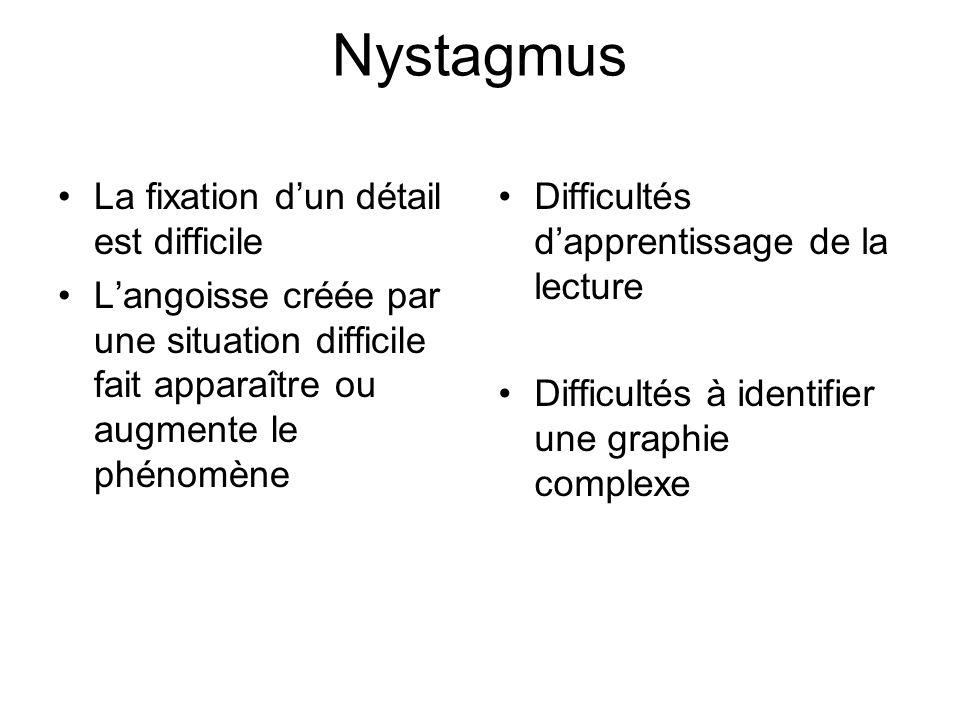 Nystagmus La fixation d'un détail est difficile