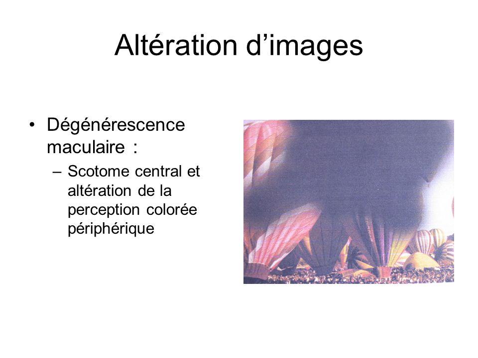 Altération d'images Dégénérescence maculaire :