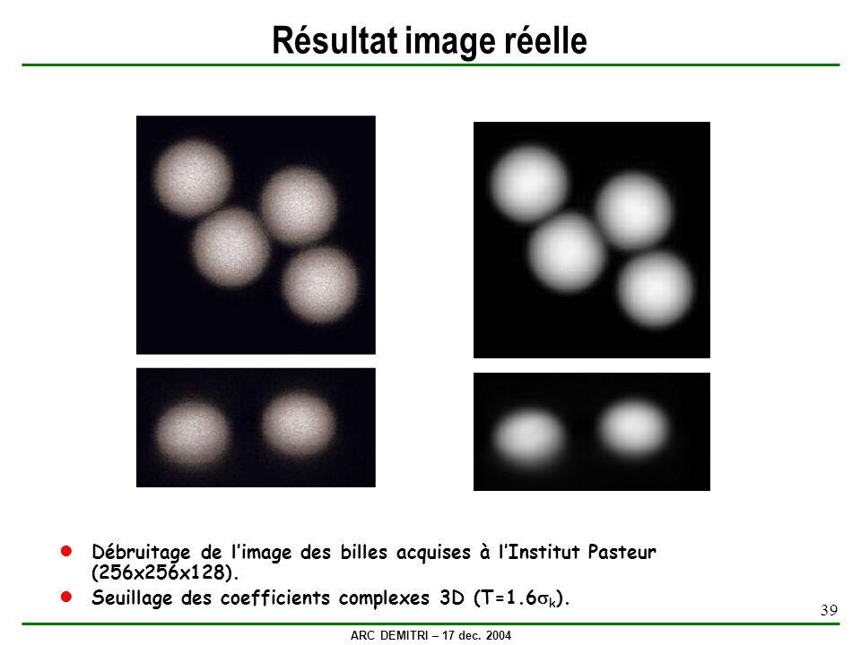 Résultat image réelle Débruitage de l'image des billes acquises à l'Institut Pasteur (256x256x128).