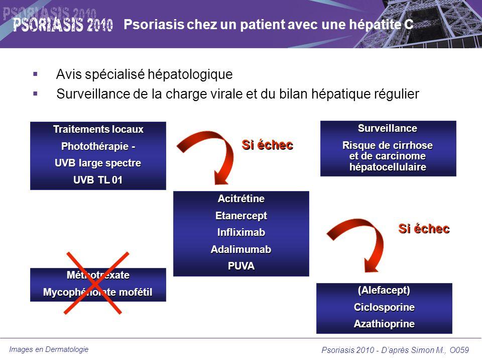 Psoriasis chez un patient avec une hépatite C