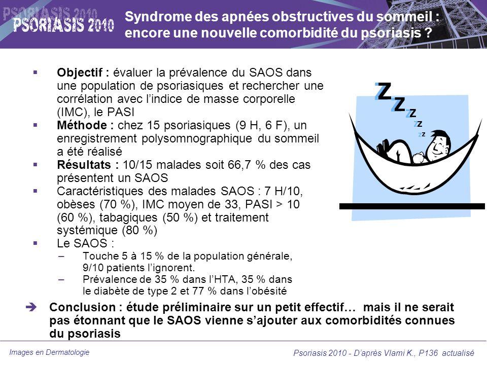 Syndrome des apnées obstructives du sommeil : encore une nouvelle comorbidité du psoriasis