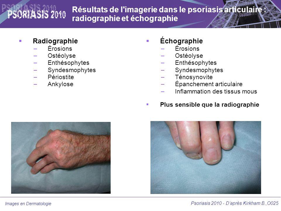 Résultats de l imagerie dans le psoriasis articulaire : radiographie et échographie
