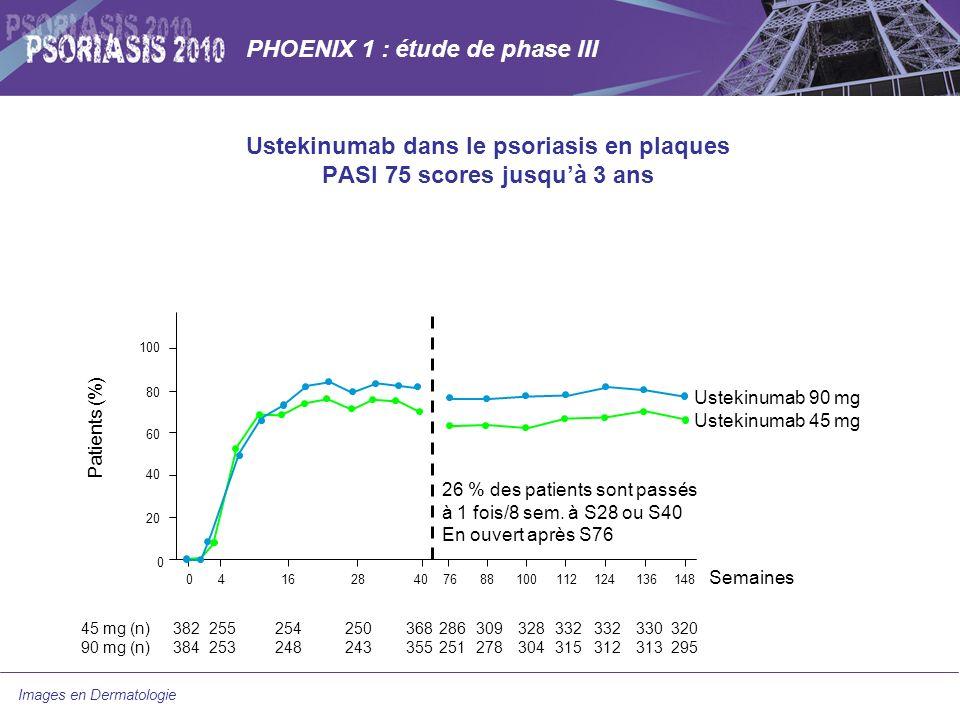 PHOENIX 1 : étude de phase III