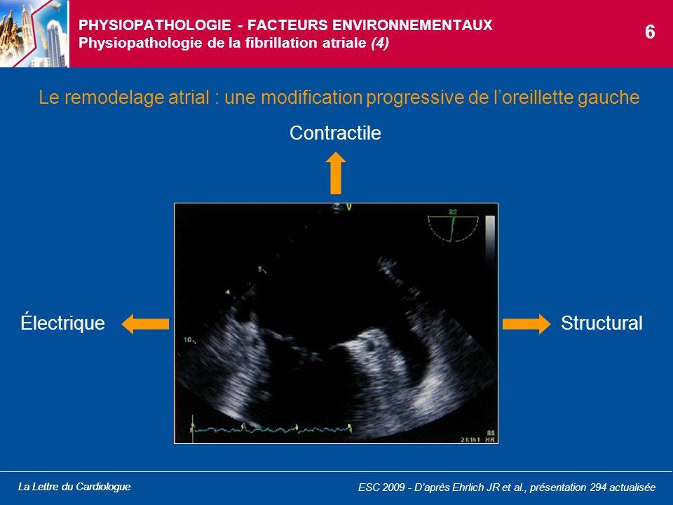 PHYSIOPATHOLOGIE - FACTEURS ENVIRONNEMENTAUX Physiopathologie de la fibrillation atriale (4)