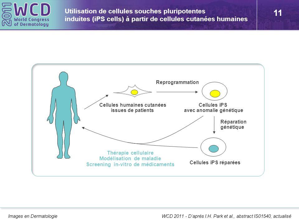 Utilisation de cellules souches pluripotentes induites (iPS cells) à partir de cellules cutanées humaines