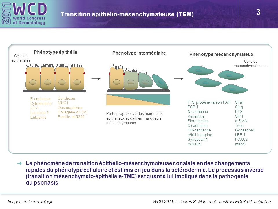 Transition épithélio-mésenchymateuse (TEM)