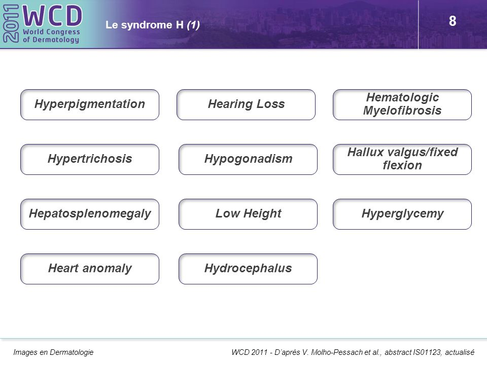 Hematologic Myelofibrosis Hallux valgus/fixed flexion