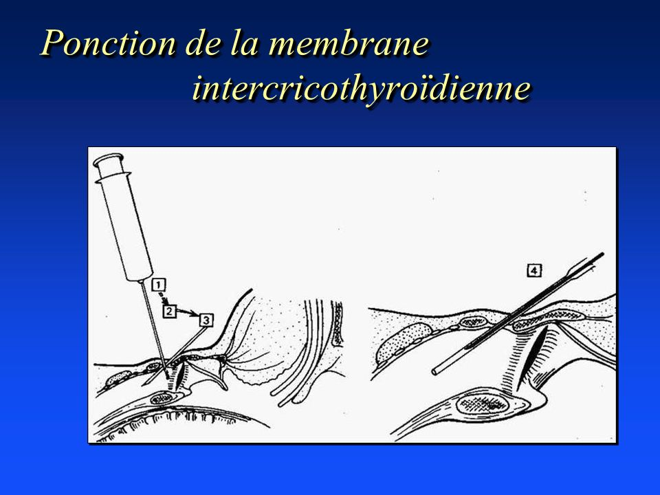 Ponction de la membrane intercricothyroïdienne