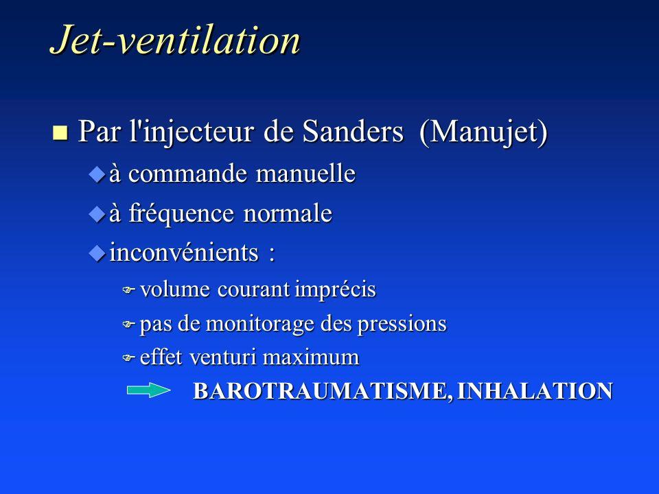 Jet-ventilation Par l injecteur de Sanders (Manujet)