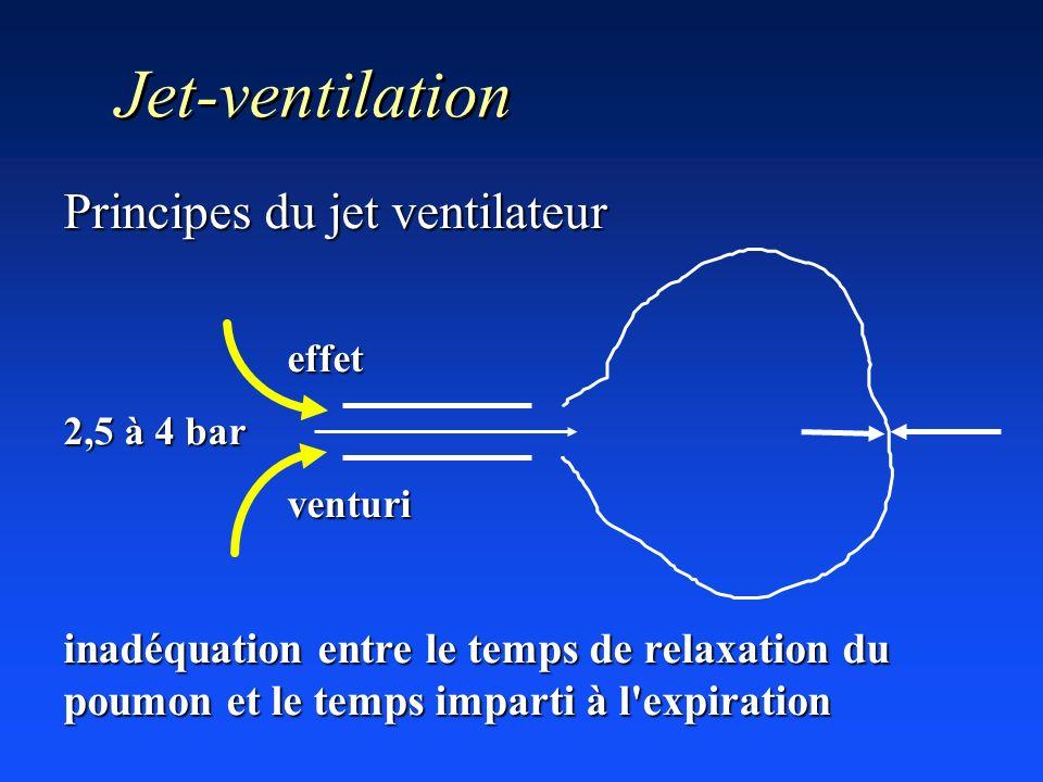 Jet-ventilation Principes du jet ventilateur