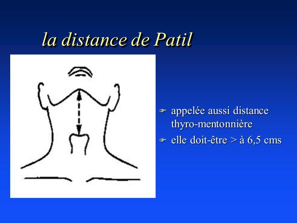 la distance de Patil appelée aussi distance thyro-mentonnière