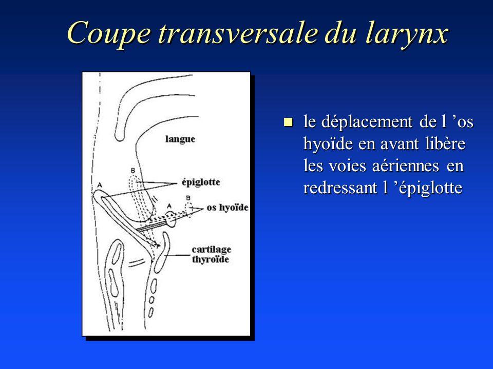 Coupe transversale du larynx