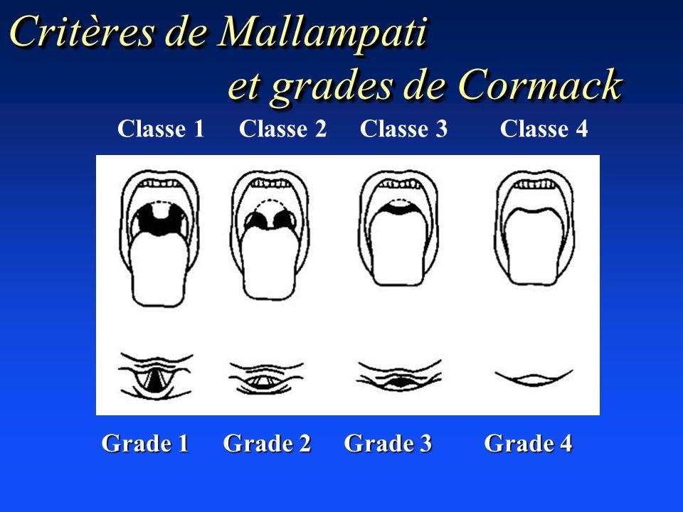 Critères de Mallampati et grades de Cormack