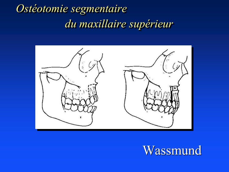 Ostéotomie segmentaire du maxillaire supérieur