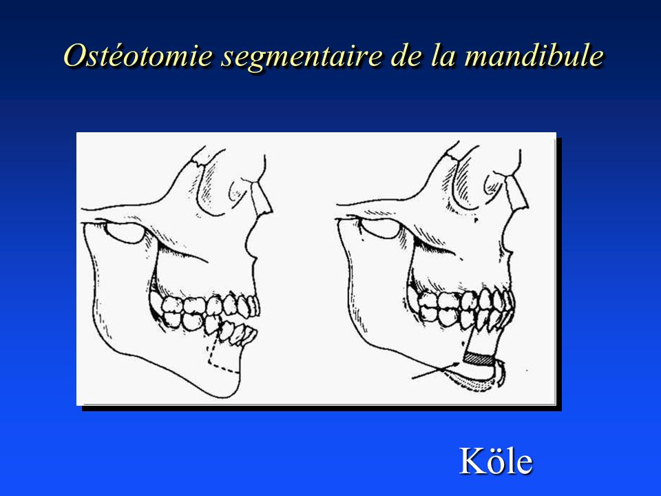 Ostéotomie segmentaire de la mandibule