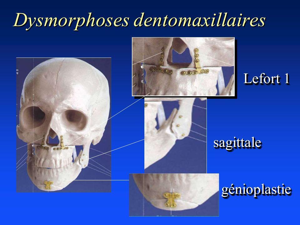 Dysmorphoses dentomaxillaires