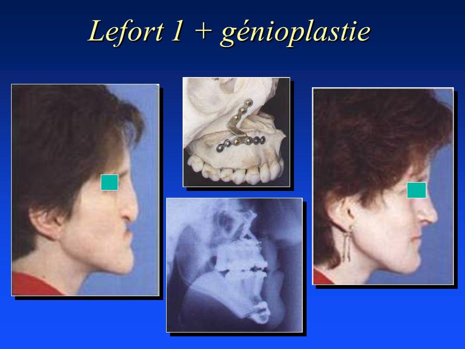 Lefort 1 + génioplastie