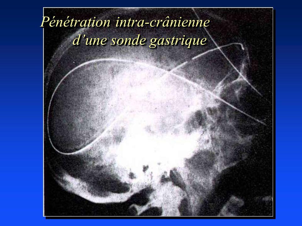 Pénétration intra-crânienne d'une sonde gastrique