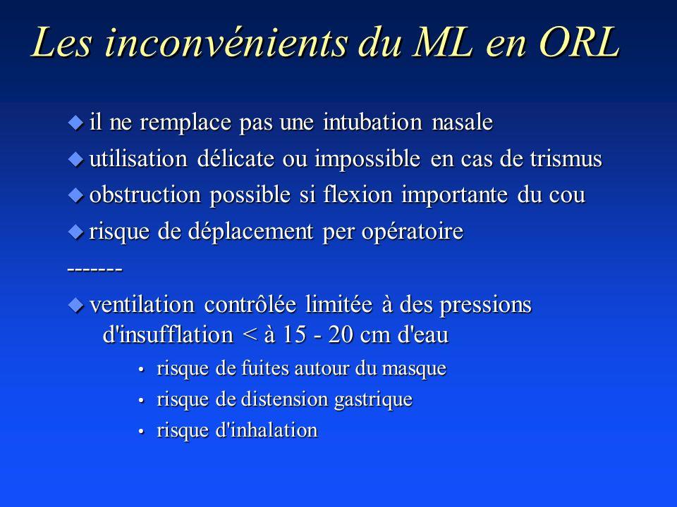 Les inconvénients du ML en ORL